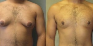 beforeaftergyno-630x315