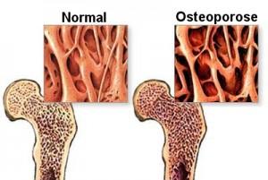 osteoporose-1