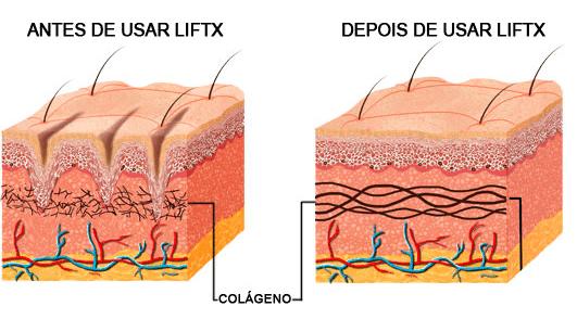 liftx