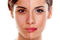 Tratamentos para o envelhecimento facial