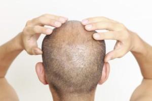 couro_cabeludo_homem